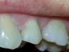 Izbeljivanje pojedinackog zuba - posle