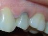 Izbeljivanje pojedinackog zuba - pre