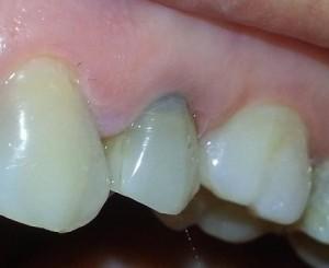 Izbeljivanje zuba - pre