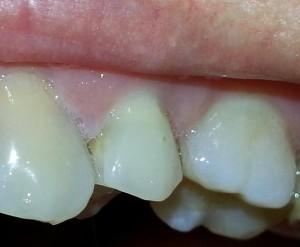 Izbeljivanje zuba - posle