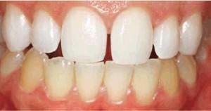izbeljivanje zuba posle 8 noci