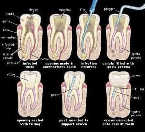 _karijes i lecenje zuba+
